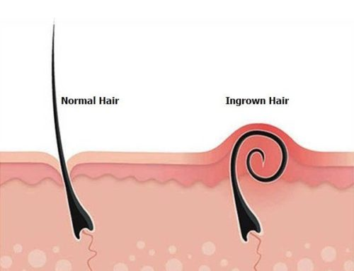 Ingrown Hairs… and how to deal with them.